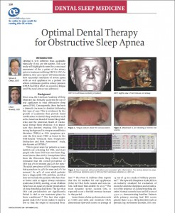 Dental Therapy for OSA thumb
